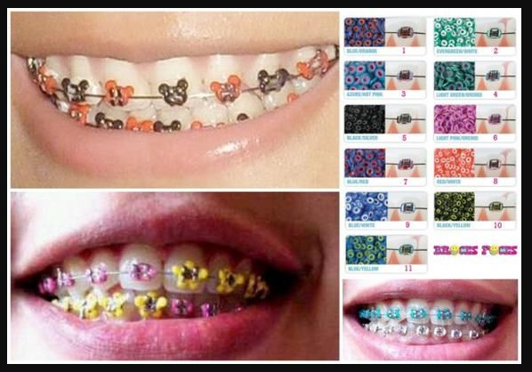 The dangers of using fake dental braces magtxt fake dental braces solutioingenieria Image collections