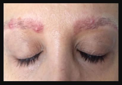 acne growing on along the eyebrows