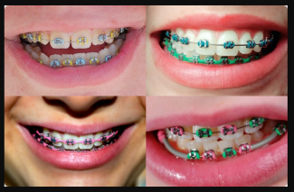 The dangers of using fake dental braces magtxt a good smile is always an asset and it can make a person look so much better however not all individuals were born lucky enough to have perfectly aligned solutioingenieria Image collections